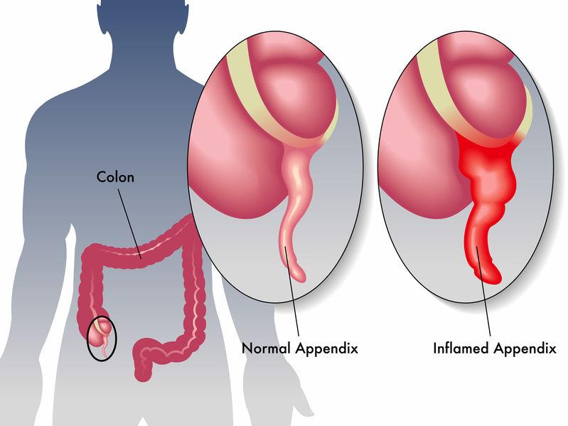 appendicitis guidelines