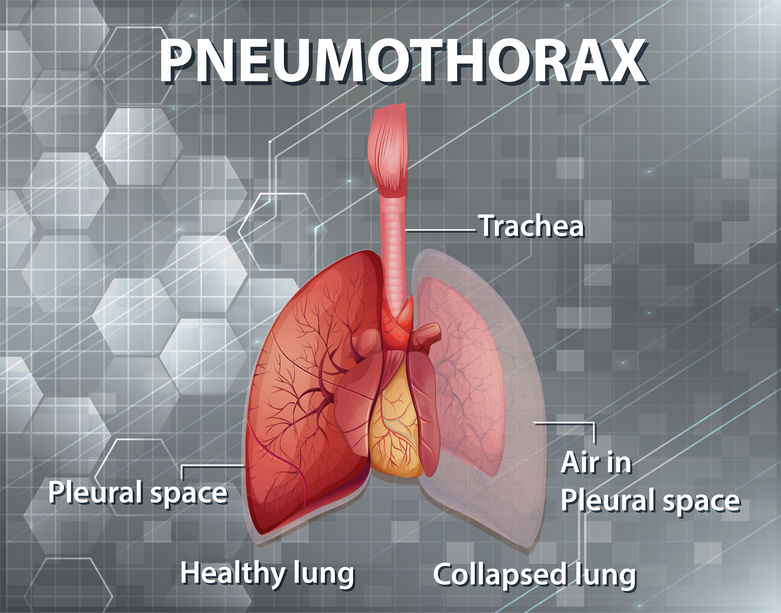 pneumothorax in the ed