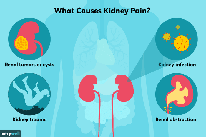 acute kidney pain